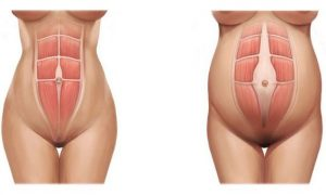 healing-abdominal-muscles-after-pregnancy